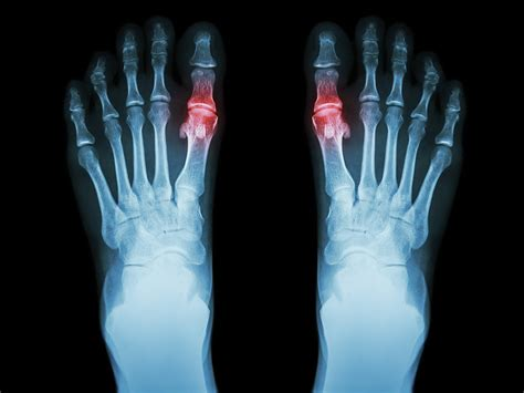 FDA Backs Cartiva Implant for Osteoarthritis in the MTP Joint