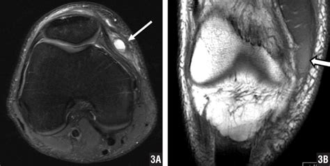 MRI Appearance of Presumed Self-inflicted Trauma in the