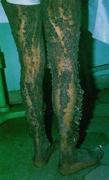 Gigantic ichthyosis hystrix - Journal of the American